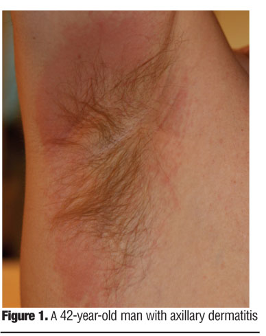 Antiperspirant and Deodorant Allergy Diagnosis and Management