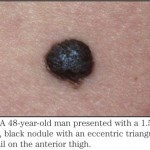 Unusual Documentation of the Transformation of a Nevus into Malignant Melanoma