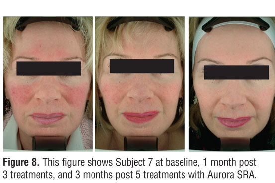 Successful Treatment Of Erythematotelangiectatic Rosacea With