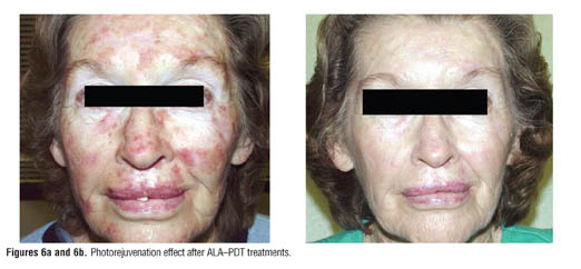The Use of Photodynamic Therapy in the Treatment of Actinic