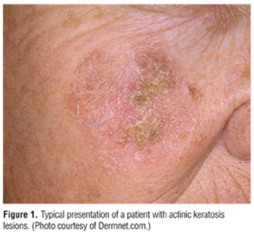 Considerations for Use of Fluorouracil Cream 0 5% for the