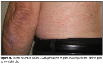 Dietary Nickel as a Cause of Systemic Contact Dermatitis