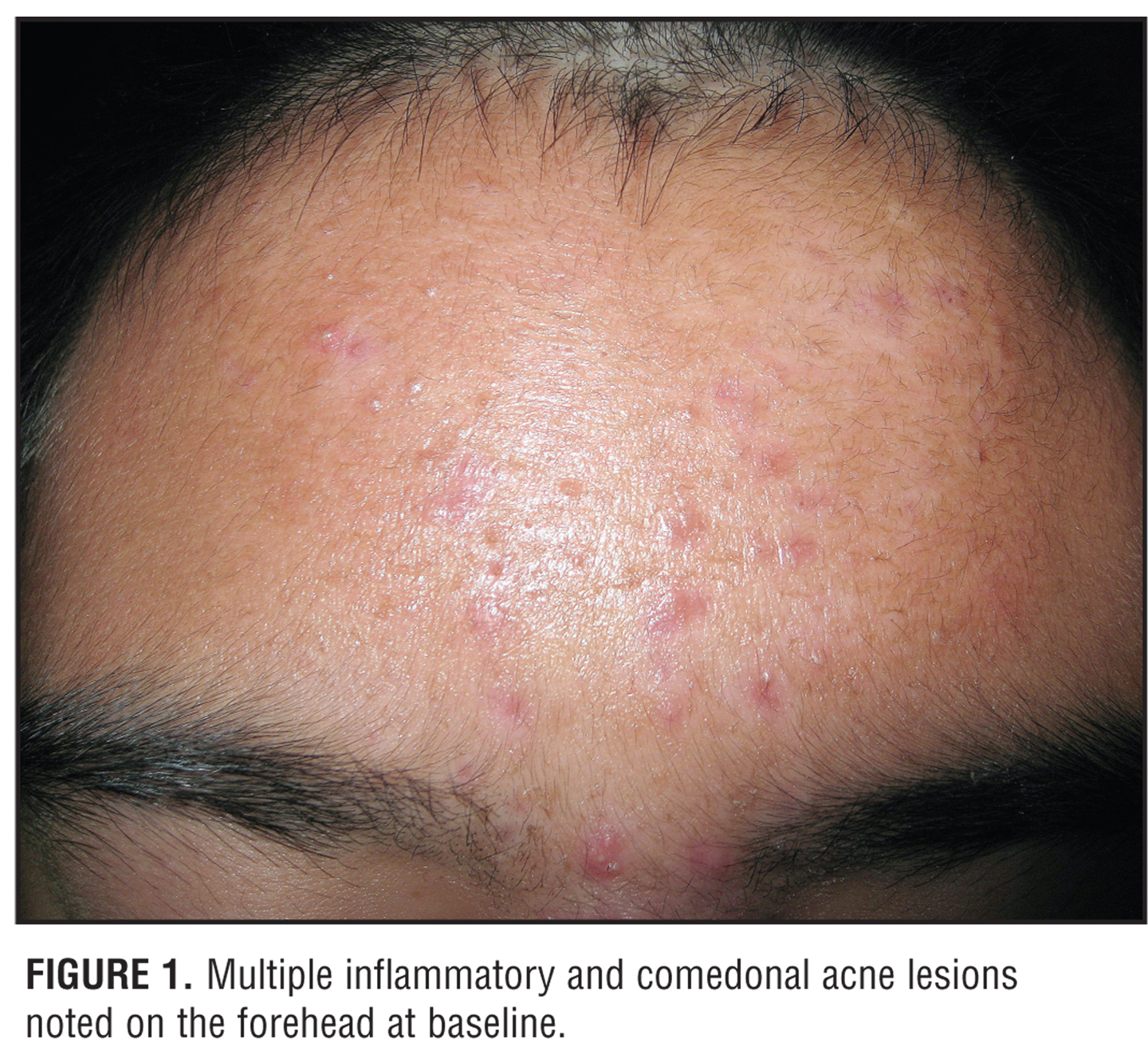 Image Gallery tretinoin reaction
