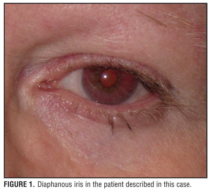 A Case of Hermansky-Pudlak Syndrome with Pulmonary Sarcoidosis