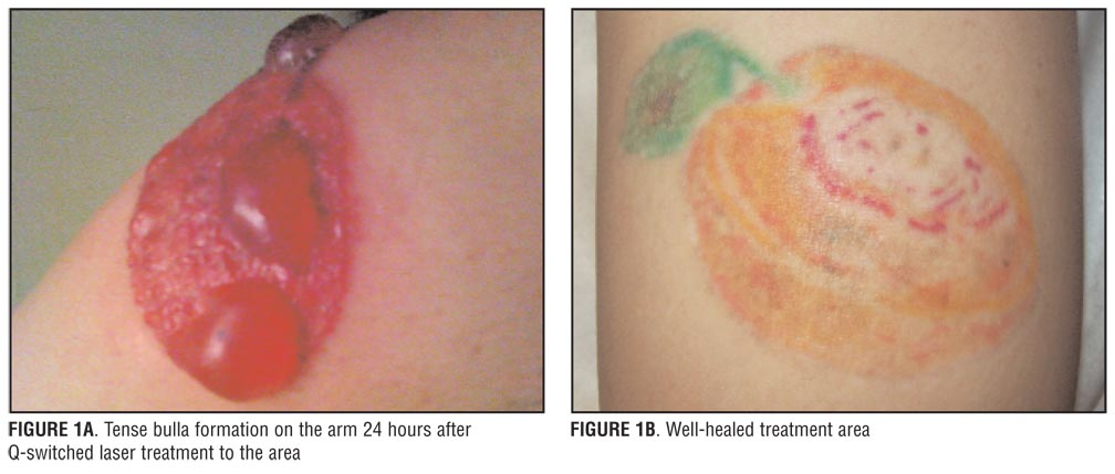 Treatment of Large Bulla Formation after Tattoo Removal with a Q ...