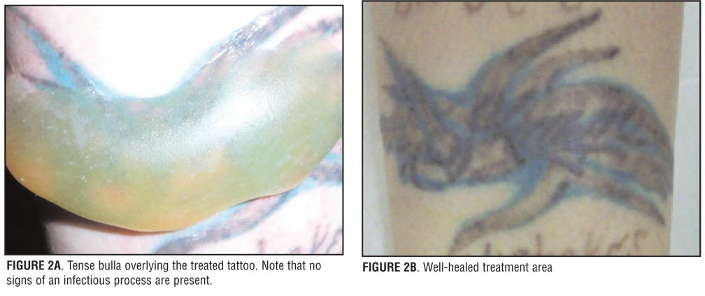 Additionally The Patients Failed To Elevate And Intermittently Ice Recently Treated Tattoo Areas As Instructed