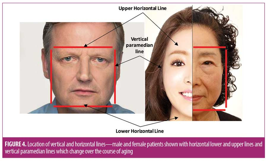 The 12-point Revitalization Guide to Pan-facial Application of