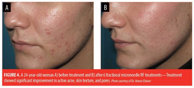 Note the improvement in the acne after Fractional Microneedling Radiofrequency