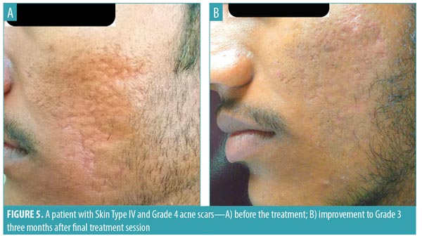Subcision And Microneedling As An Inexpensive And Safe Combination To Treat Atrophic Acne Scars In Dark Skin A Prospective Study Of 45 Patients At A Tertiary Care Center Jcad The