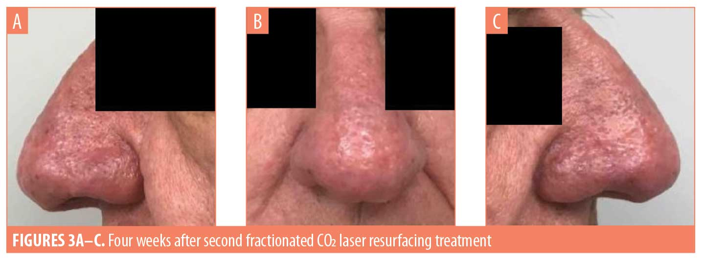 Fractionated Carbon Dioxide Laser Resurfacing as an Ideal Treatment