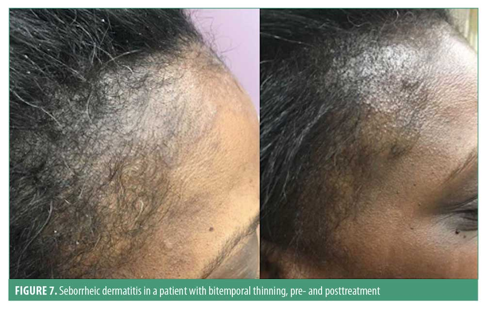 white scalp and hair loss