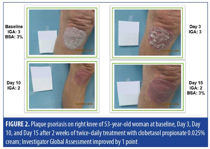 Steroid cream psoriasis how to get sex drive back after steroids