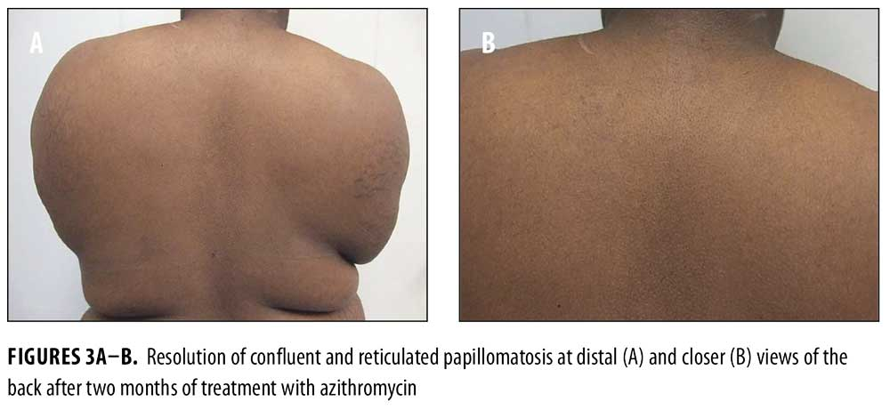 confluent and reticulated papillomatosis acanthosis nigricans