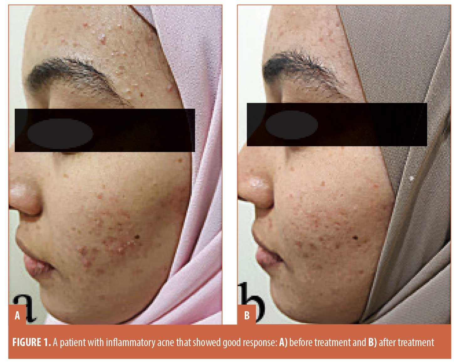 Efficacy Of Topical Timolol 0 5 In The Treatment Of Acne And Rosacea A Multicentric Study Jcad The Journal Of Clinical And Aesthetic Dermatology
