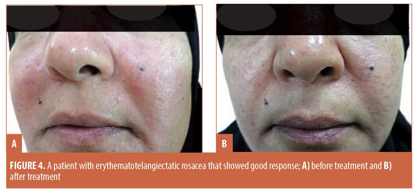 Efficacy Of Topical Timolol 0 5 In The Treatment Of Acne And