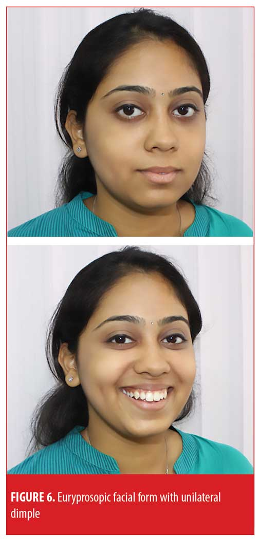 New Landmarks for the Surgical Creation of Dimples Based on Facial