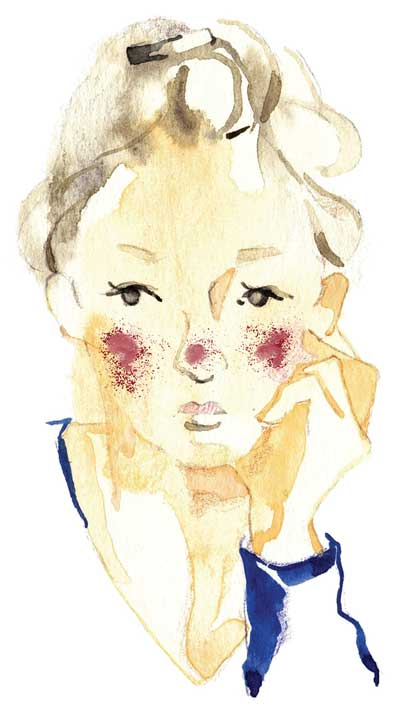 Managing Rosacea in the Clinic: From Pathophysiology to Treatment—A Review of the Literature