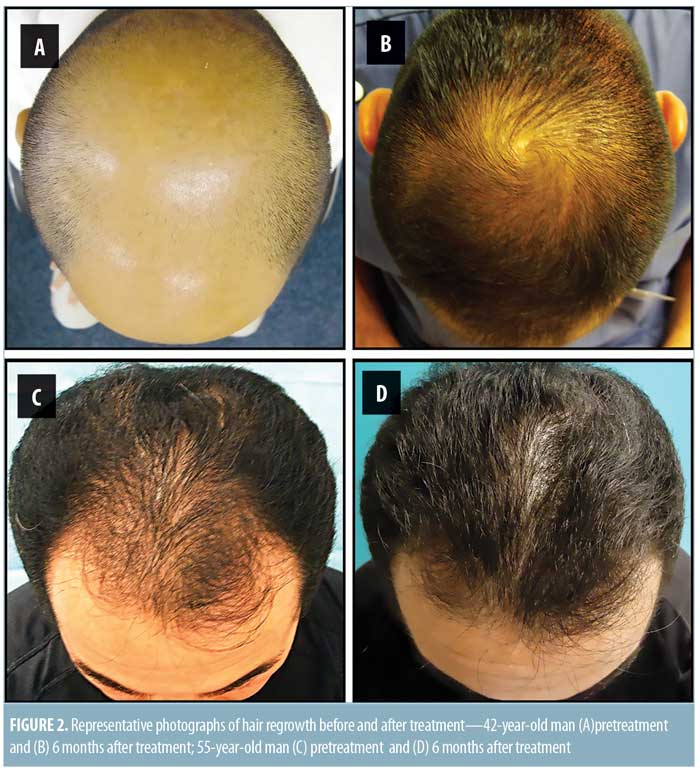 Androgenetic Alopecia Treatment in Asian Men : JCAD | The