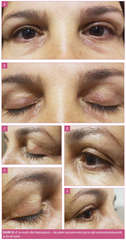 Effectiveness Of Topical Onion Extract Gel In The Cosmetic