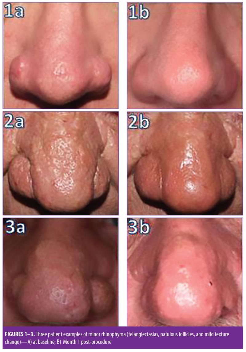 Erbium Doped Yttrium Aluminium Garnet Er Yag Laser Resurfacing Restores Normal Function And Cosmesis In Patients With Severe Rhinophyma Jcad The Journal Of Clinical And Aesthetic Dermatology