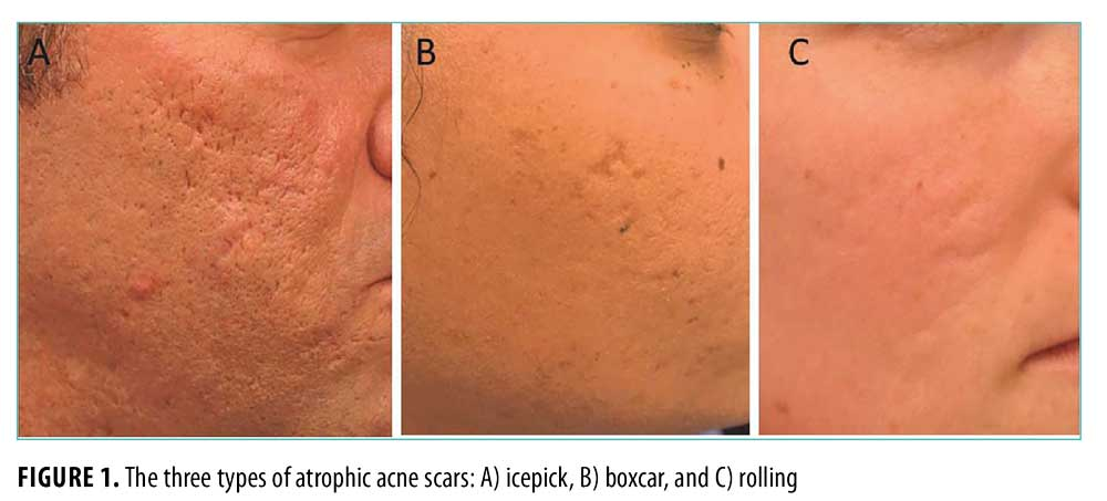 Acne Scarring Pathogenesis Evaluation And Treatment Options Jcad The Journal Of Clinical And Aesthetic Dermatology