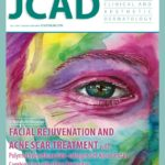 Facial Rejuvenation and Acne Scar Treatment—June 2018 Digital Edition