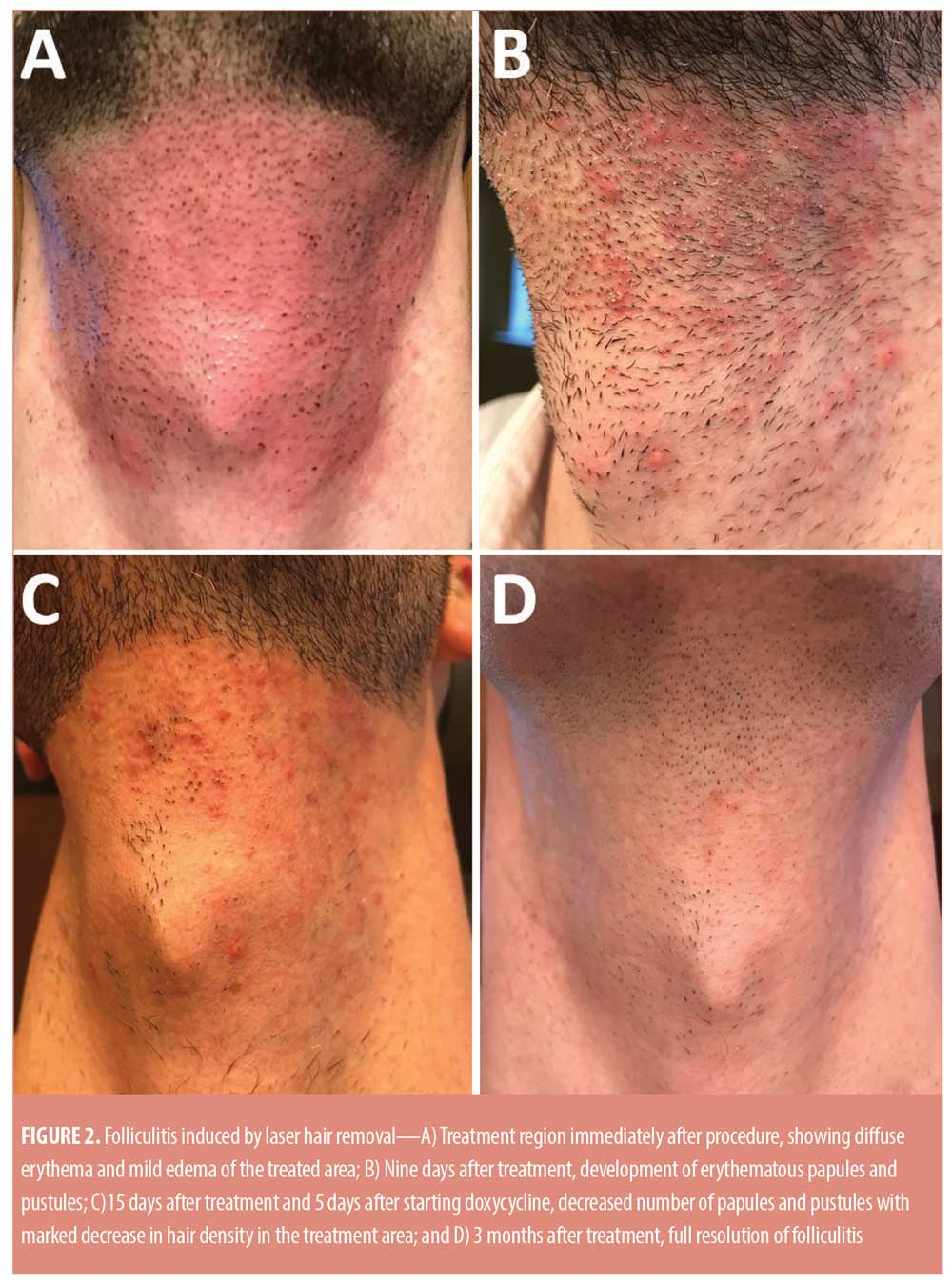 Folliculitis Induced By Laser Hair Removal Proposed Mechanism And Treatment Jcad The Journal Of Clinical And Aesthetic Dermatology