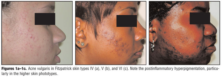 A Review of Acne in Ethnic Skin: Pathogenesis, Clinical Manifestations, and Management Strategies
