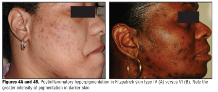 Postinflammatory Hyperpigmentation: A Review of the