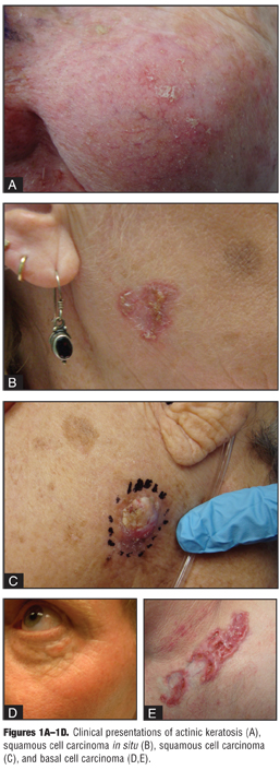 Actinic Keratosis Treatment as a Key Component of Preventive Strategies for Nonmelanoma Skin Cancer