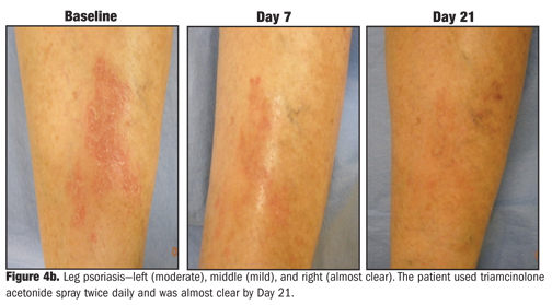 psoriasis treatment cream triamcinolone