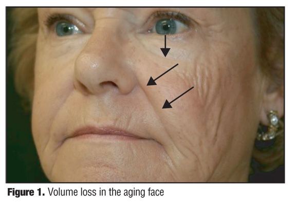 Avoiding Malar Edema During Midface/Cheek Augmentation with