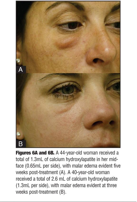 Avoiding Malar Edema During Midface/Cheek Augmentation with