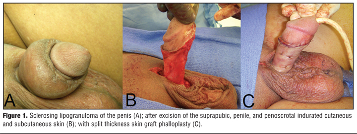Mineral Oil-induced Sclerosing Lipogranuloma of the Penis