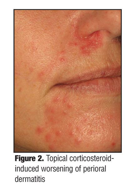 steroid induced facial rash