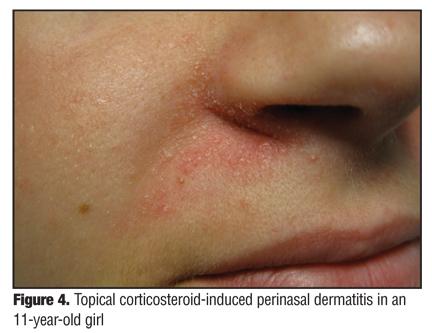 Management of Papulopustular Rosacea and Perioral Dermatitis