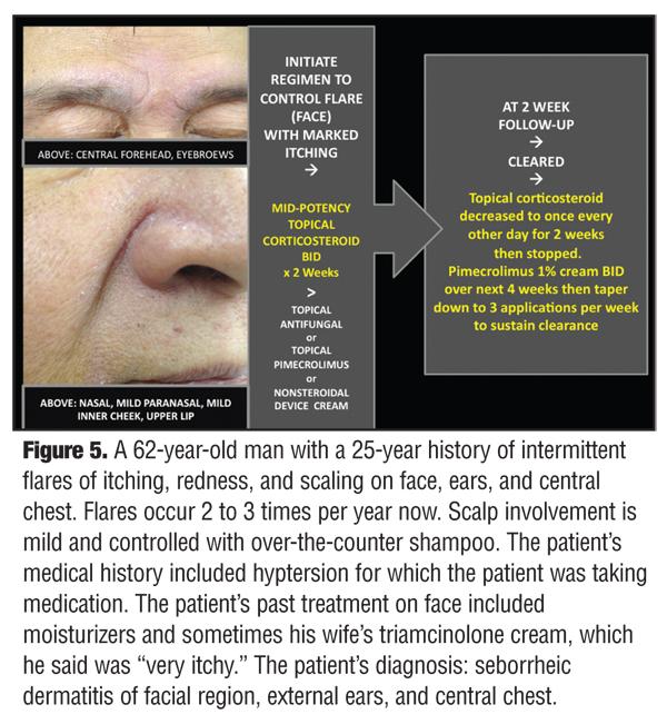 nonsteroidal cream atopic dermatitis