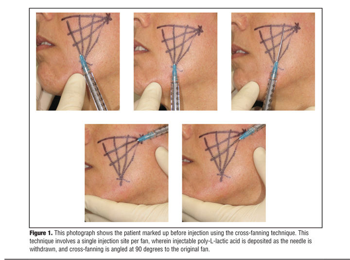 Review and Evaluation of Treatment Procedures Using Injectable Poly-L-Lactic Acid in the Treatment of Human Immunodeficiency Virus–associated Facial Lipoatrophy