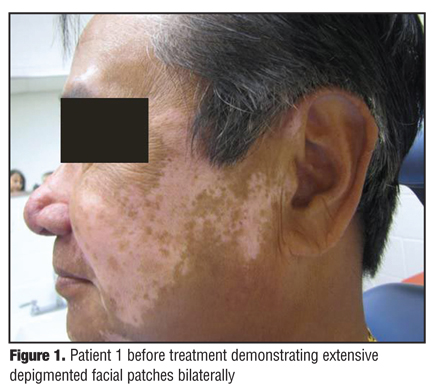 Rapid Response of Facial Vitiligo to 308nm Excimer Laser and Topical Calcipotriene