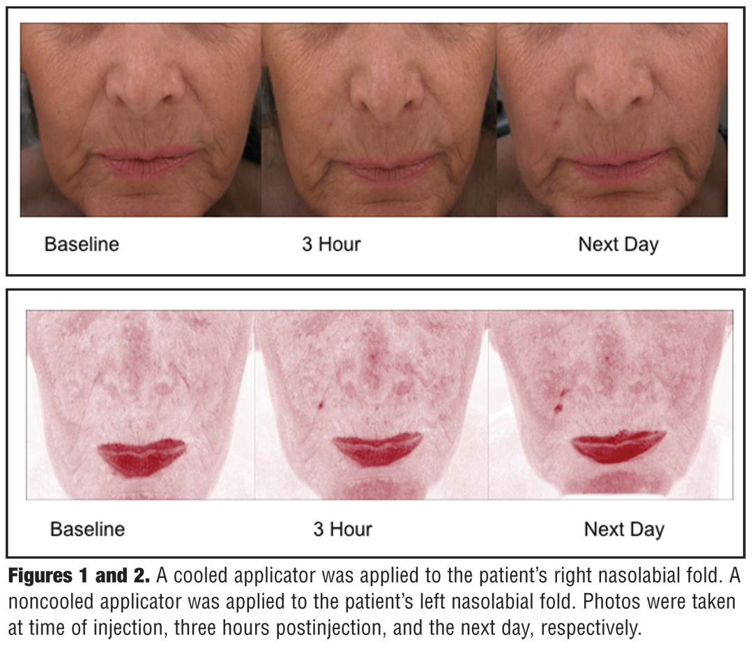 The Use of a Contact Cooling Device to Reduce Pain and Ecchymosis Associated With Dermal Filler Injections