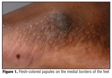 Inverse Papular Acrokeratosis of Oswaldo Costa: A Case Report