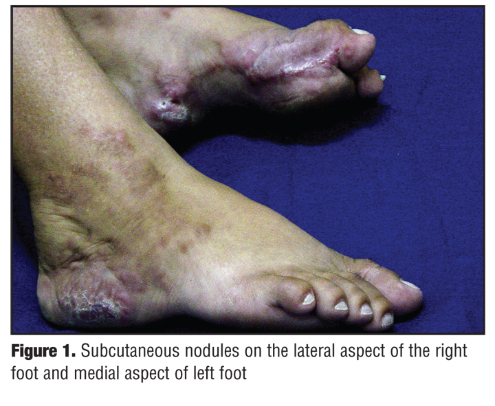 Ledderhose Disease: An Unusual Presentation