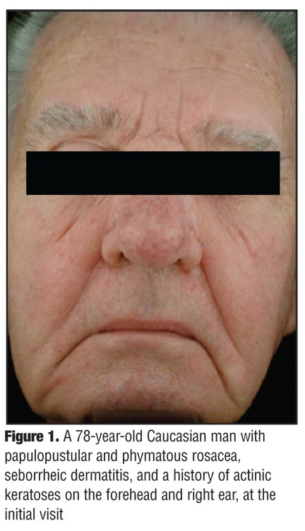Rational Management of Papulopustular Rosacea With Concomitant Facial Seborrheic Dermatitis-A Case Report