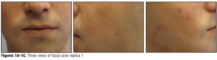 Three-dimensional, Full-sized, Silicone-based, Facial Replicas for Teaching Outcome Measures in Acne