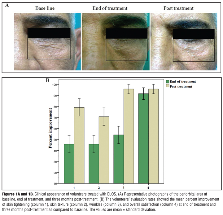 Electro-optical Synergy Technique A New and Effective Nonablative Approach to Skin Aging