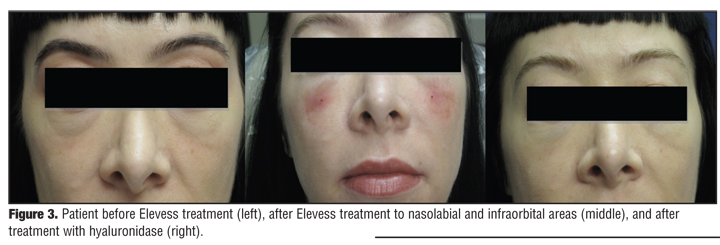 Severe Acute Local Reactions to a Hyaluronic Acid-derived Dermal