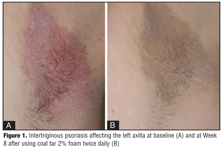Use of Topical Coal Tar Foam for the Treatment of Psoriasis in Difficult-to-treat Areas