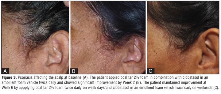 Mg psoriasis mellékhatások - Psoriasin shampoo side effects